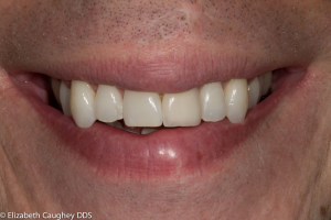 After: Single feldspathic porcelain veneer to replace fractured tooth and discolored bonding
