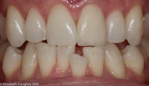 After: Single feldspathic porcelain veneer to replace fractured tooth and discolored bonding (zoomed view)