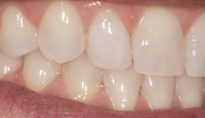 After:  porcelain veneer on lateral incisor (zoomed)