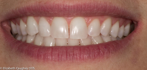 After:  porcelain veneer on lateral incisor