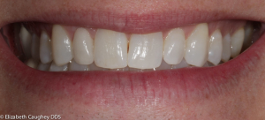 After: peg lateral incisor on patient's right (front view).