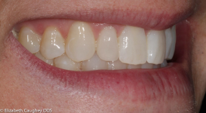 After: peg lateral incisor on patient's right (side view).