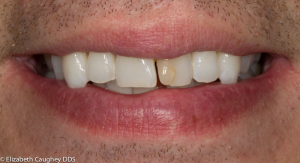Before: Fractured tooth with discolored bonding