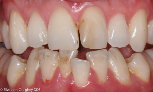 Before: Fractured tooth with discolored bonding (zoomed view)