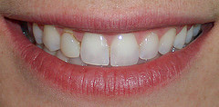 Before: stained bonding resin on lateral incisor