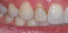 Before: stained bonding resin on lateral incisor (zoomed)