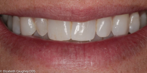 Before: peg lateral incisor on patient's right (front  view).