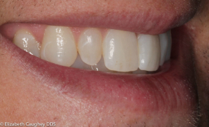 Before: peg lateral incisor on patient's right (side view).