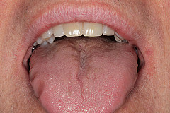 Clinical signs of Obstructive Sleep Apnea- scalloped tongue