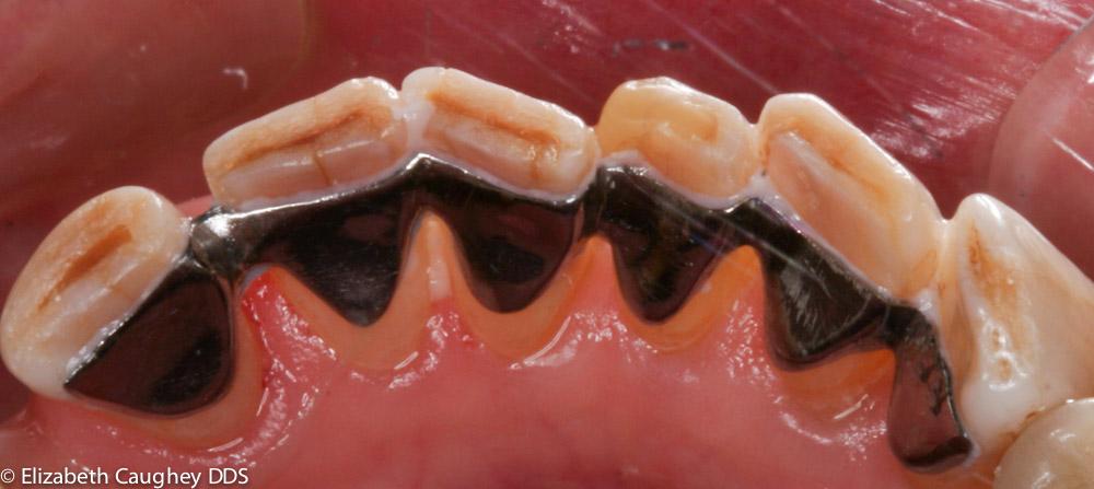 Accidental Fork Bite Threatens Lower Teeth Elizabeth Caughey