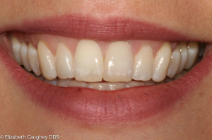 After photo: placement of a hand-stacked custom blend of feldspathic porcelains  on the left central incisor mirror the intrinsic details of the natural right central incisor.