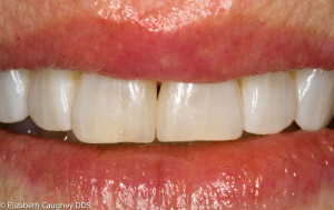 Replacing the resin fillings after bleaching the teeth allowed space closure and smile balancing.