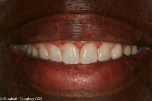 Final dentistry in place: new porcelain crowns with ideal color match, lifted gums, and overall aesthetic balance.