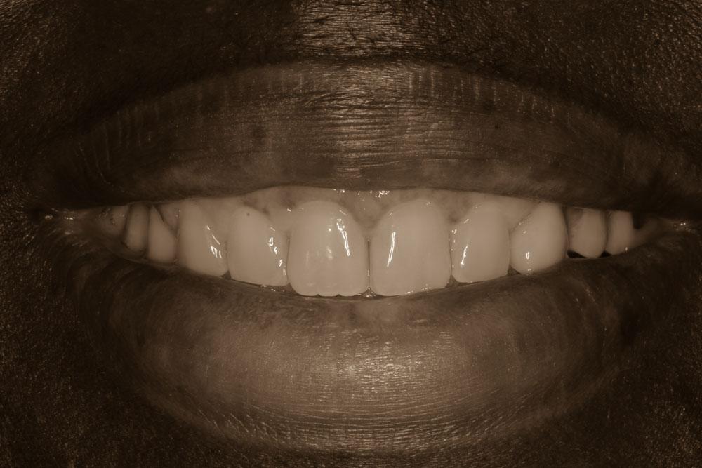 Gum Recontouring, Braces, Crowns