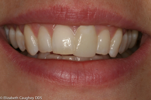 Before image: upper left central incisor had been previously restored with monochromatic, oversized porcelain veneer.