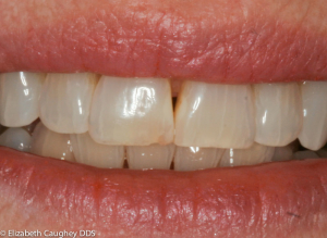 Older fillings between the front two upper teeth have discolored over time.