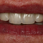 Atlanta reconstructive comprehensive dentistry using dental implant and all-ceramic crowns