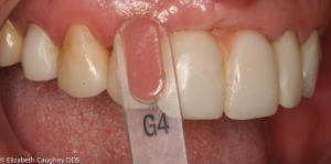Shade tab of gum tissue