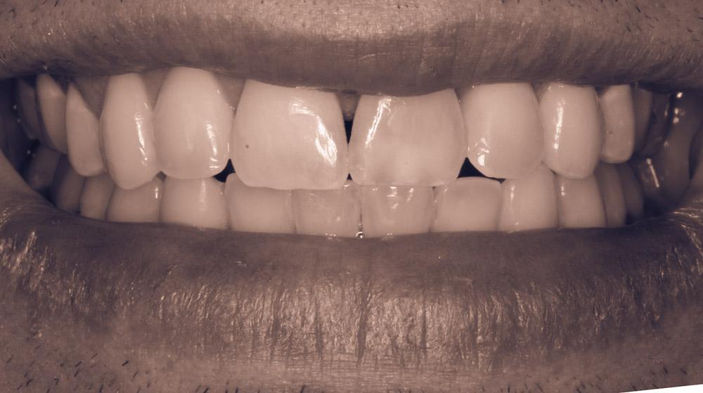 Internal tooth bleaching, braces