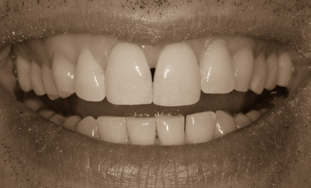 Tooth Reshaping Enhances Smile
