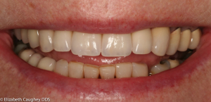 After photo: Porcelain crowns and implant-crown