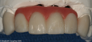 Lab communication: Ideal wax-up showing planned balance of pink and white porcelains.