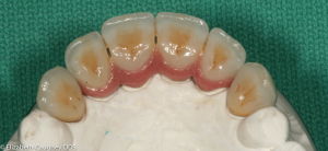 Final implant-bridge ready for insertion. Occlusal view.