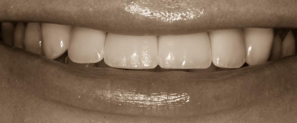 Smile restoration after trauma