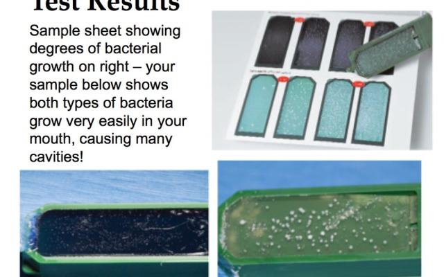 Customized Bacterial testing for Decay sensitivity