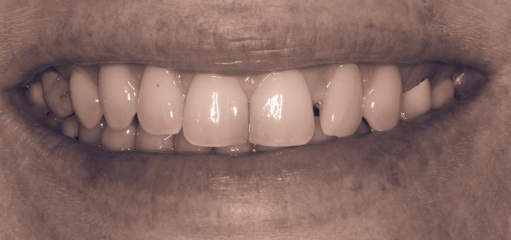 Baby Teeth Get Implant Dentistry