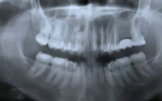 Occlusal correction for Sinus pain