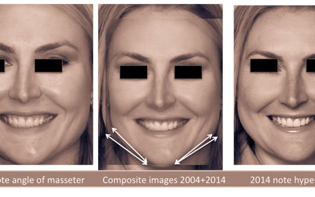 """Facial """"body building"""" related to tooth shifting"""