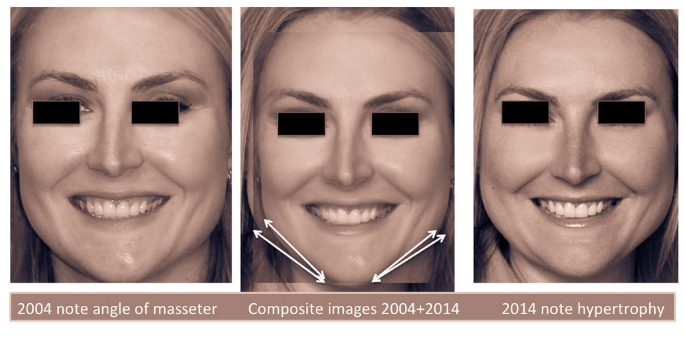 Facial Body Building Related To Tooth Shifting Elizabeth