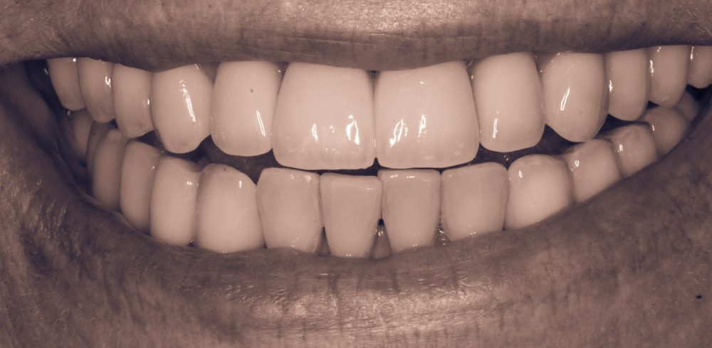 Implant Reconstructive Dentistry