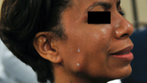 Botox reduces headache for clencher