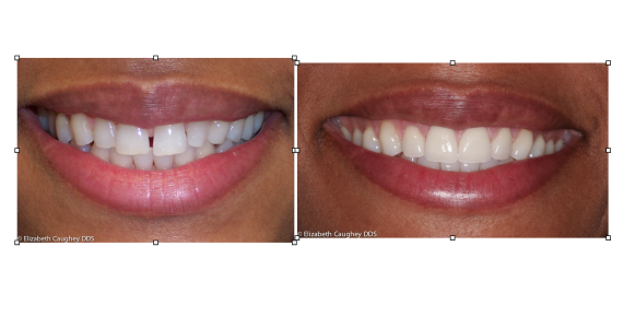 Porcelain veneers closing spaces