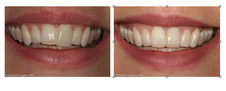 Single Feldspathic Porcelain Veneer
