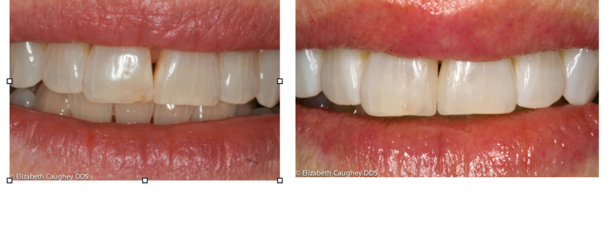 Resin Fillings, Tooth Bleaching
