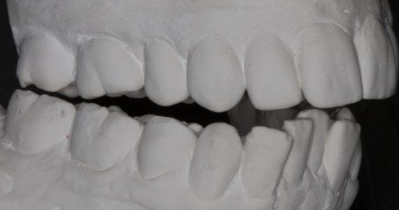 Reestablishing lordosis reveals bite distortion