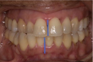 Uncorrected, the cross-bite appears unilateral. This is due to a functional shift of the lower jaw.