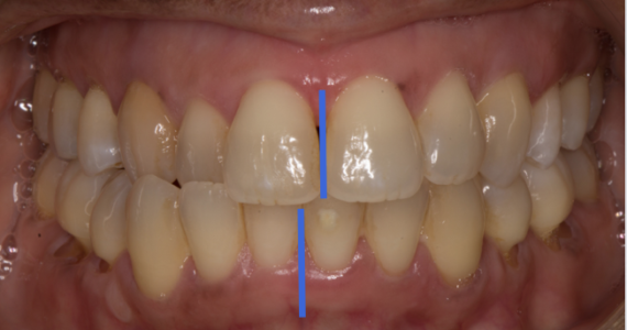 Bite splint to manage cross-bite