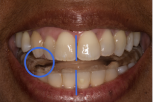 After splint releases posturing, unilateral cross-bite now appears as bilateral end-to-end bite at canines & posterior teeth.