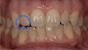 Patient cannot engage this R canine at all in any of her tooth-to-tooth jaw functions.