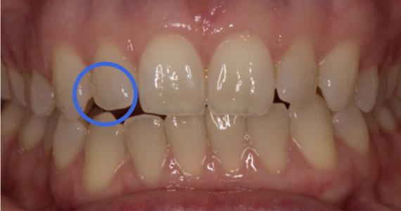 Splint for anterior open-bite distortion