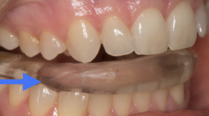 While contact on lingual of upper canine is desirable on bite splint, contact across canine tip is not. Quickly engaging, then disengaging, from the splint is shown here.