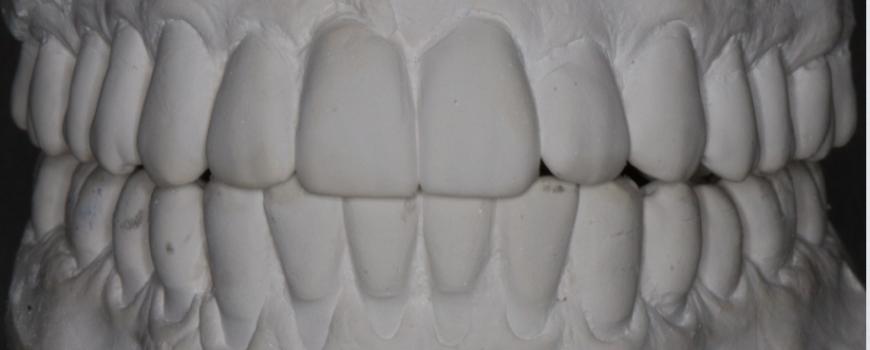 Splint for Posterior Open Bite