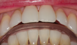 Freedom of anterior tooth contact at splint delivery appointment