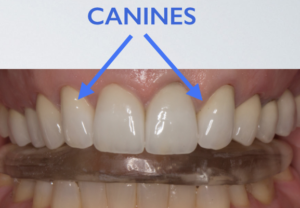 splint for canine transposition