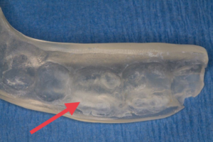 tartar buildup weakens splint