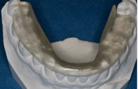 bite splint without molar support